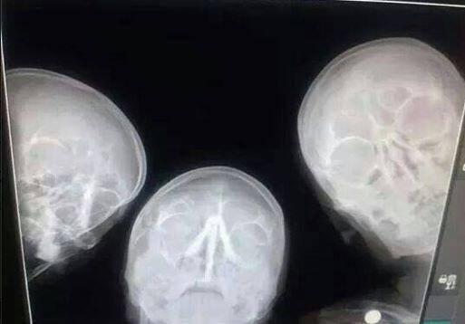 When radiologists take selfies. http://t.co/tKhryr4YNu