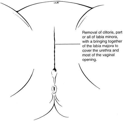 vagina Sewing a