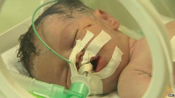 This baby was delivered from her dead mother's body - watch @BBCiPannell's report from #Gaza http://t.co/AXPf1MFX8q http://t.co/sQmbfWYp9z