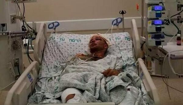 Jewish mob beat 2 Palestinians in Jerusalem w/ iron bars. Police refused to call ambulance. http://t.co/zOSzEJti2g http://t.co/gkjmSYJ3Qs