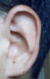 耳にホクロ