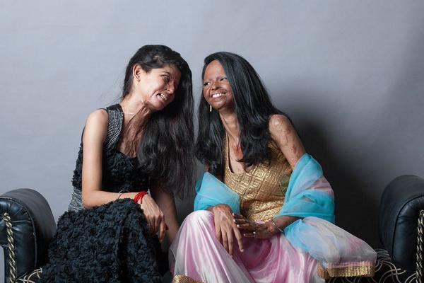 These 7 Pictures From A Photo-shoot Of Acid Attack Survivors Will Change Your Idea Of Beauty http://t.co/VzG01E0pEQ http://t.co/GtOet9VHv0