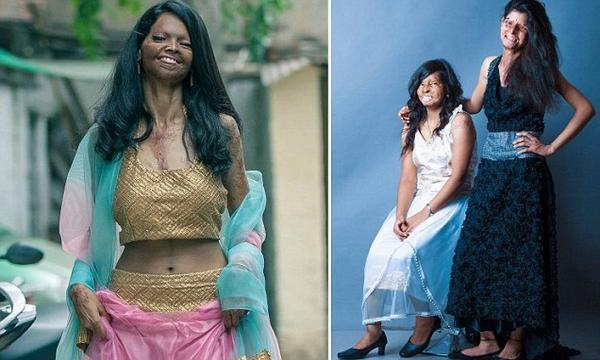 Indian acid attack survivors unite for #inspirational shoot http://t.co/7jiuBX2xqa http://t.co/cM0H6CAgfF