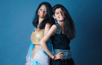 Acid attack survivors' photoshoot goes viral on Facebook | India Today http://t.co/QZHQrjDLxC http://t.co/mnxiCzw8sK