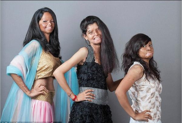 Inspirational: Acid attack survivors pose as models for a fashion shoot (from left to right: Laximi, Rita & Rupa http://t.co/ph1BNDLAiF