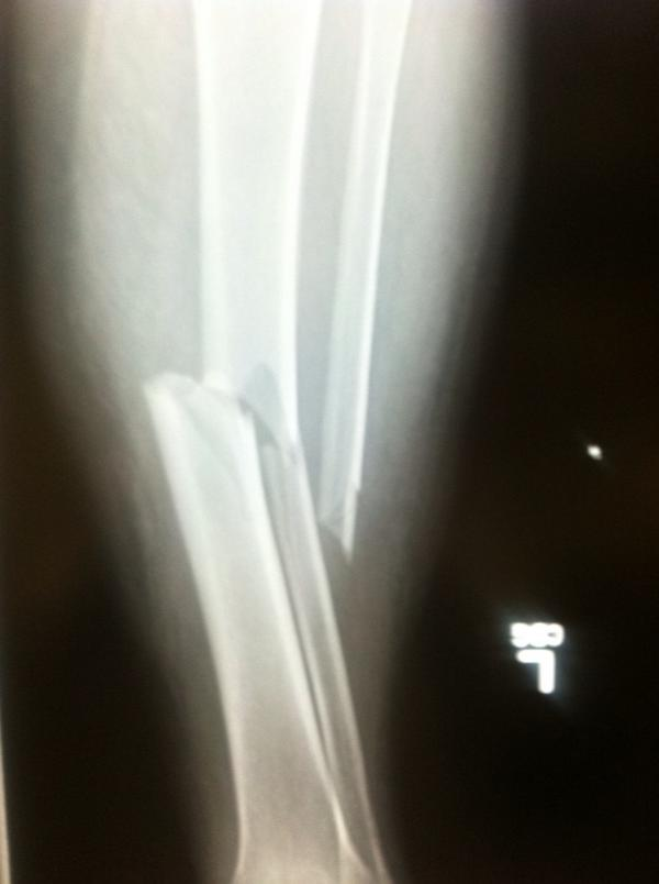 Open Tibia Fibula Fracture