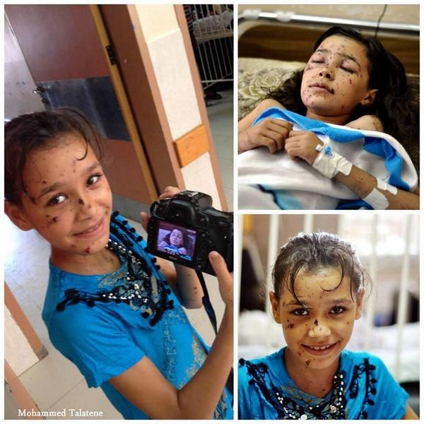 Do you remember this girl from #Gaza? She is now better. Made me happy to see this. Photo by Mohammed Taletene http://t.co/BKz9JgDNaS
