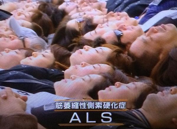 ALS(筋萎縮性側索硬化症).bot on...