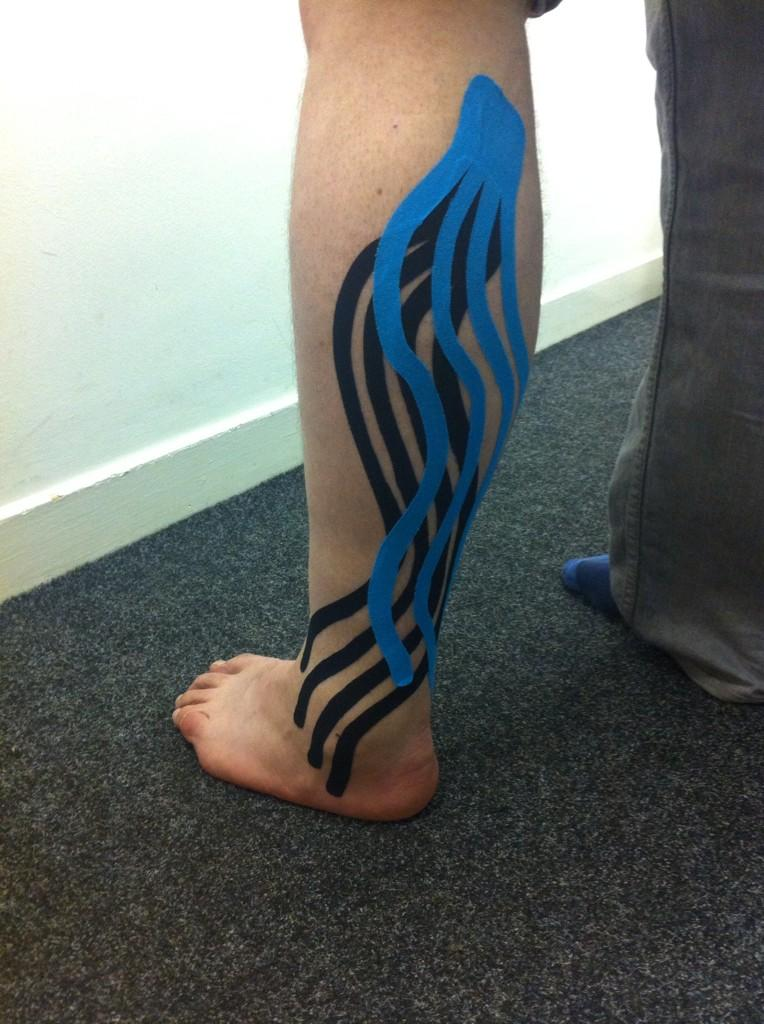 After just one session, this gentleman's swelling was waaaay down @SPORTTAPEPRO #gotapain? http://t.co/ALVmvfcIIA