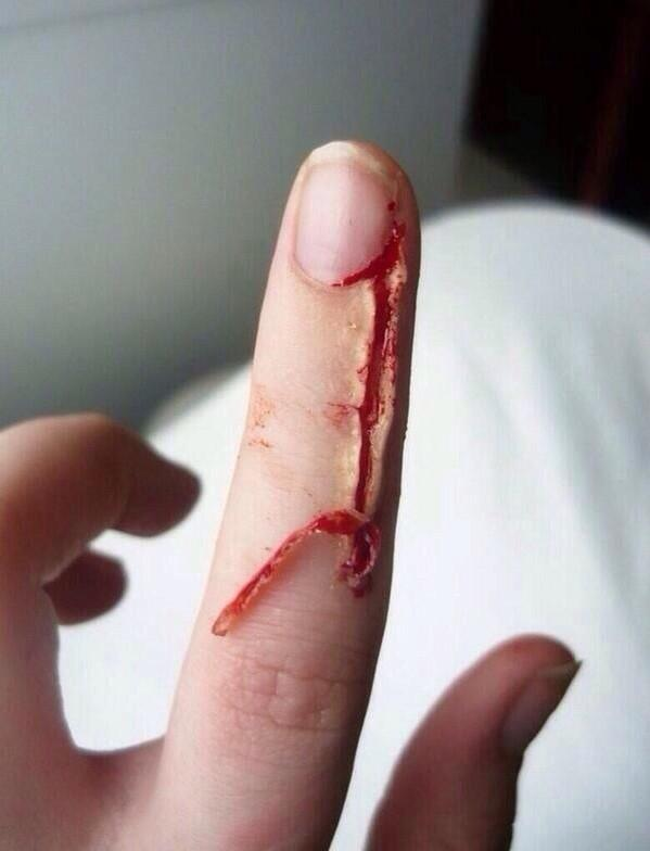Paul Hyland On Twitter Oh Look Theres A Little Bit Of Skin Hanging From Off Just Under My Finger Nail Let Me Peel That