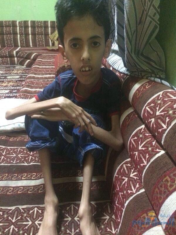 """@Du3aa_78: علاجه يكلف 40 ألف اللي يقدر يساعده يكلمني و ياليت تسوون رتويت عشان نساعده ❤️ http://t.co/Et7ZuCPm9y""  Cc: @fayez_malki"