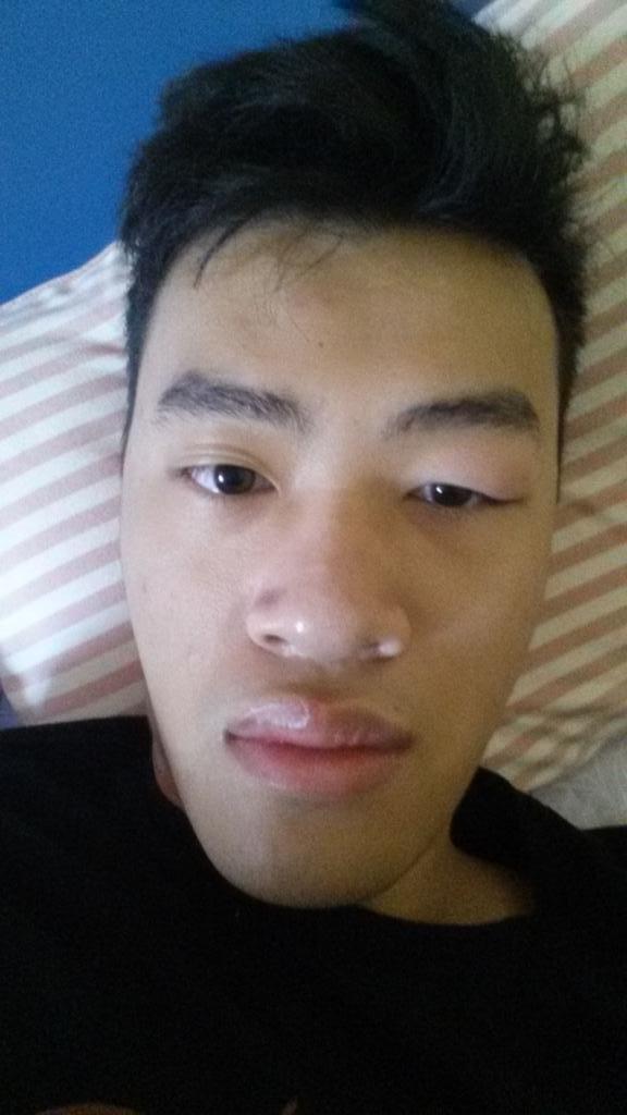 The Bite on my Eye