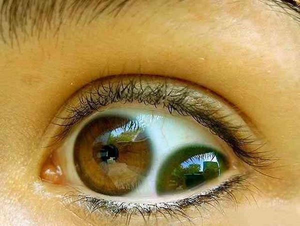 タトゥー 眼球