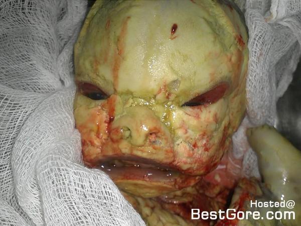 harlequin like ichthyosis