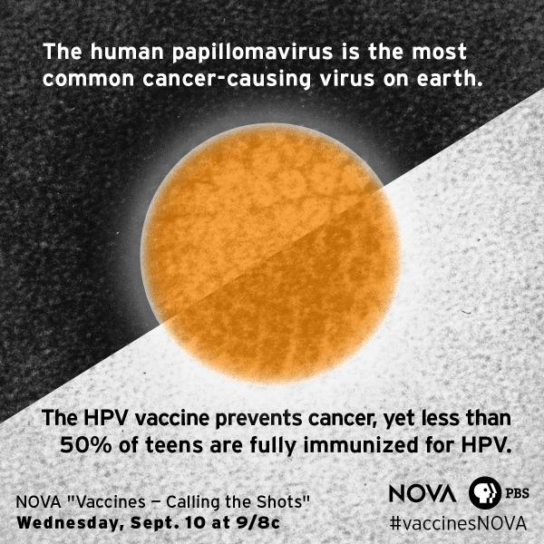 Vaccines Calling Shots Excellent Pbs >> Nova Pbs On Twitter Hpv Causes 20k Preventable Cancers Year In