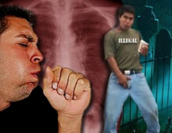 Diseased illegals spread Enterovirus D68 to New York