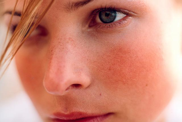 Everything you need to know about rosacea, and how to treat it: http://t.co/jkcTmltxxB http://t.co/3UEp3WPBju