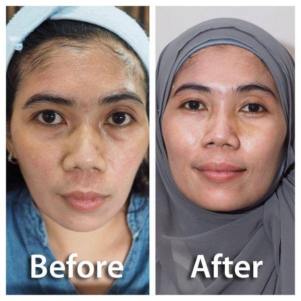 """Skin Care Viva Untuk Kulit Berminyak: DL Slim & Skin Care On Twitter: """"Before After Tanam Benang"""