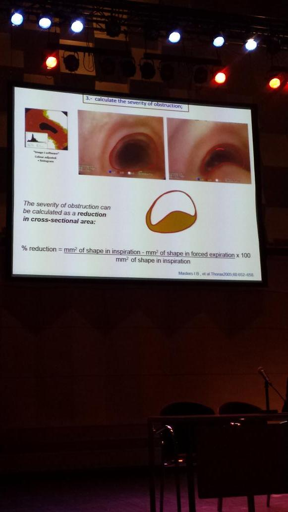 #Tracheamalacia #inoea also seen in 69% chikdren with Cystic Fibrosis #CF #inoea #inoeaconf14 http://t.co/9pQh8D7Z82