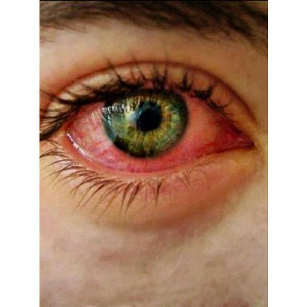 ojos rojos en fotos por que