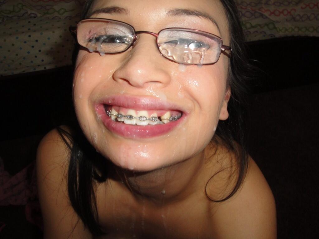 teens-with-braces-cumshot