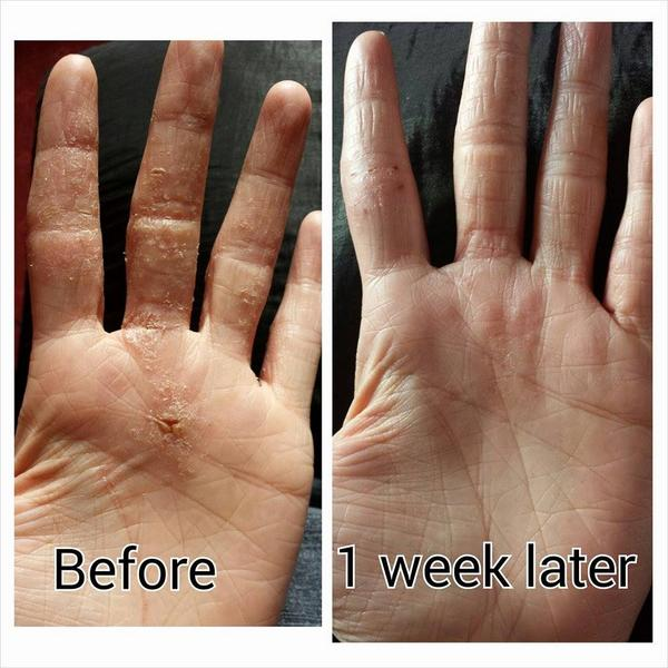 Steve Gee on Twitter hand eczema Robertson s eczema relief can help These  photos are from. Eczema Relief