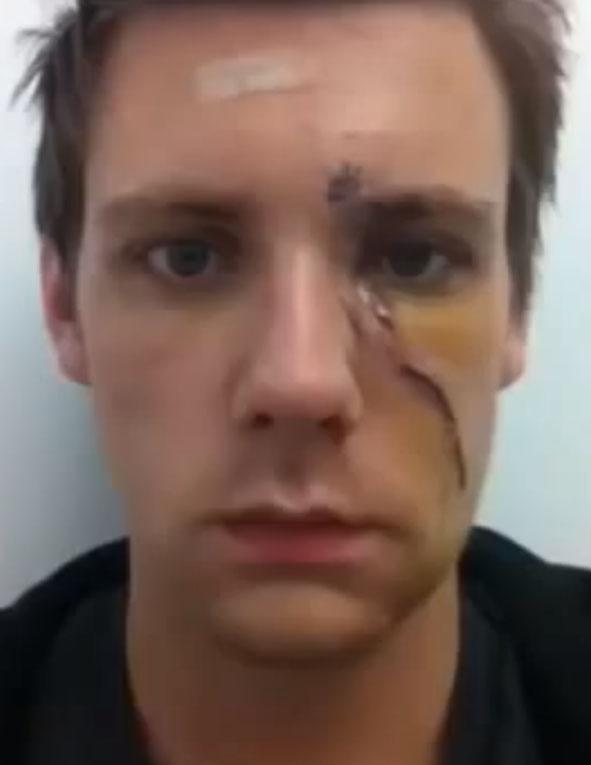 AMELIA: Facial scar healing