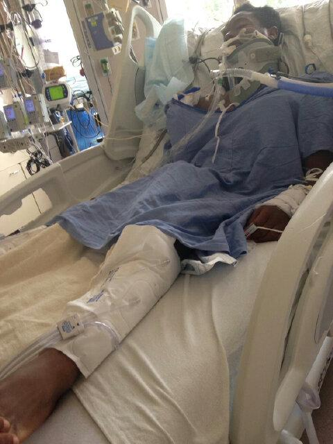Family asks for prayers as Prince George's Co teen hurt after #FrightFest has surgery TODAY to relieve brain swelling http://t.co/jcSbzOkr5n