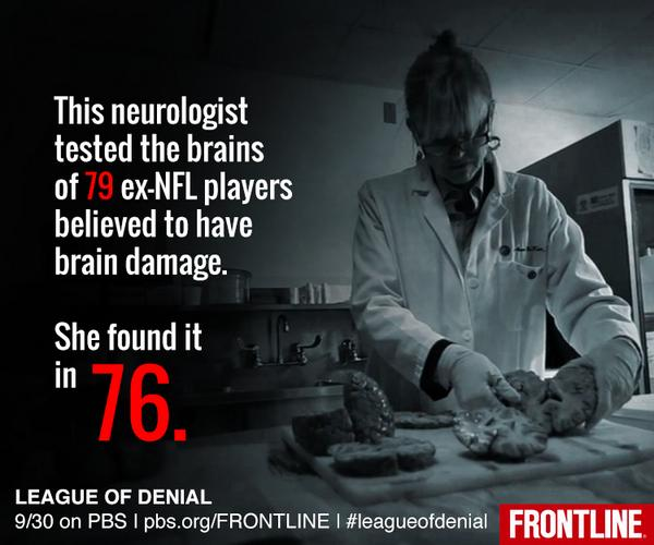 Breaking: Doctor finds 76 of 79 deceased NFL players tested for brain damage had it http://t.co/0f9WfarXJx http://t.co/UUh1KdVMud