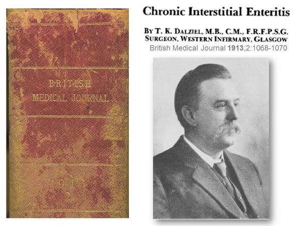 Thomas Dalziel first described Crohn's disease 100 years ago ... http://t.co/xqZkic69X2