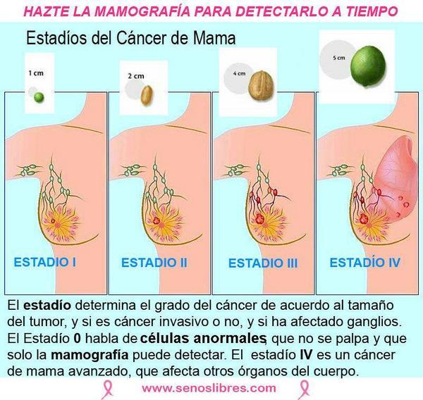 Cancer De Seno Etapa 3 B Senos Libres On Twitter Quot C