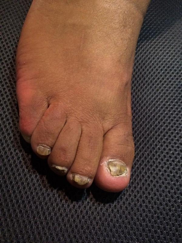 he aqui mi pata...honguiada!!! #queremosverelhongodedoncheto  esto ed lo que hay abajo de los jordan. http://t.co/qjUhNy1bpl