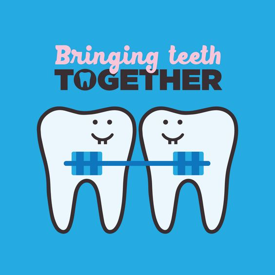 "Cute Braces Quotes: Brentwood Ortho On Twitter: ""#Brentwood Orthodontic"