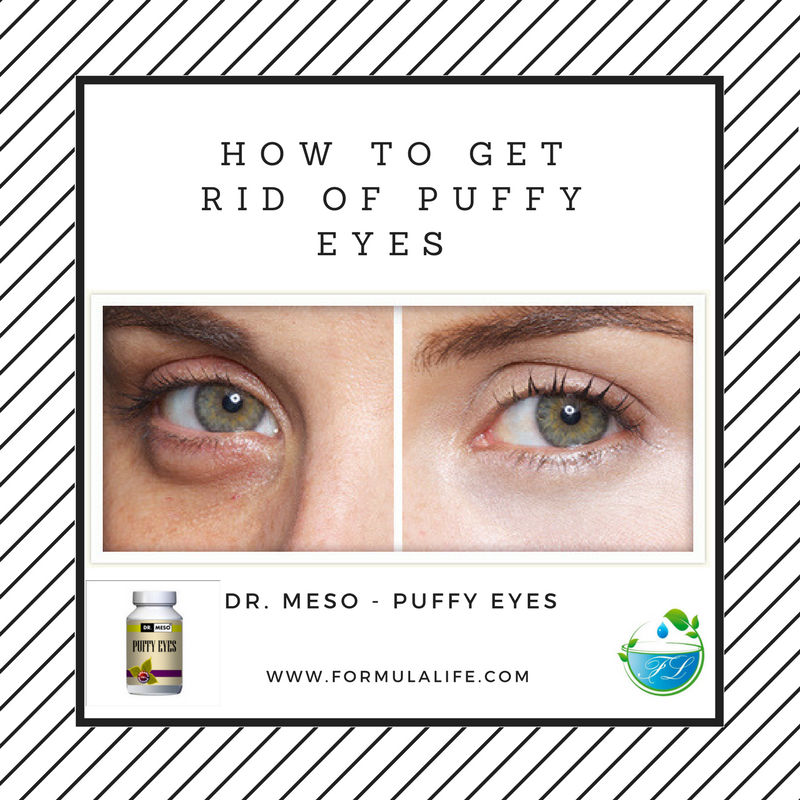 How To Get Rid of Puffy Eyes and Dark Circles  http:// ow.ly/b48S30bflqB  &nbsp;   #puffyeyes #darkcircles #formulalife #healthyliving #allaboutvision <br>http://pic.twitter.com/uiru0aP8TE