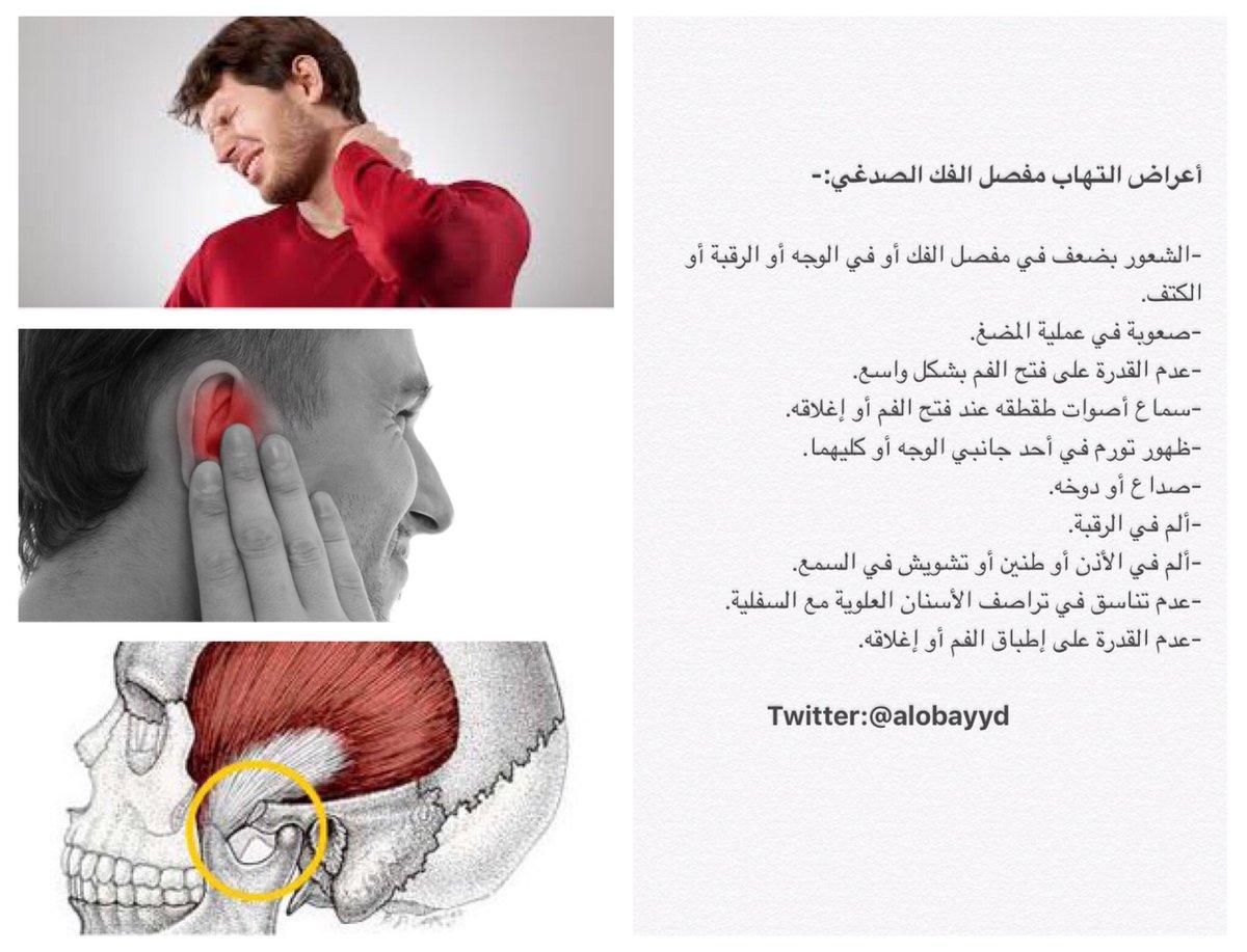 د عبدالله العبي د No Twitter أعراض التهاب مفصل الفك الصدغي الاستيوباثي