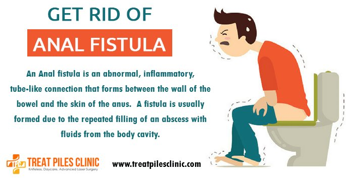 Symptoms Of Anal Fistula - Pics And Galleries-9490