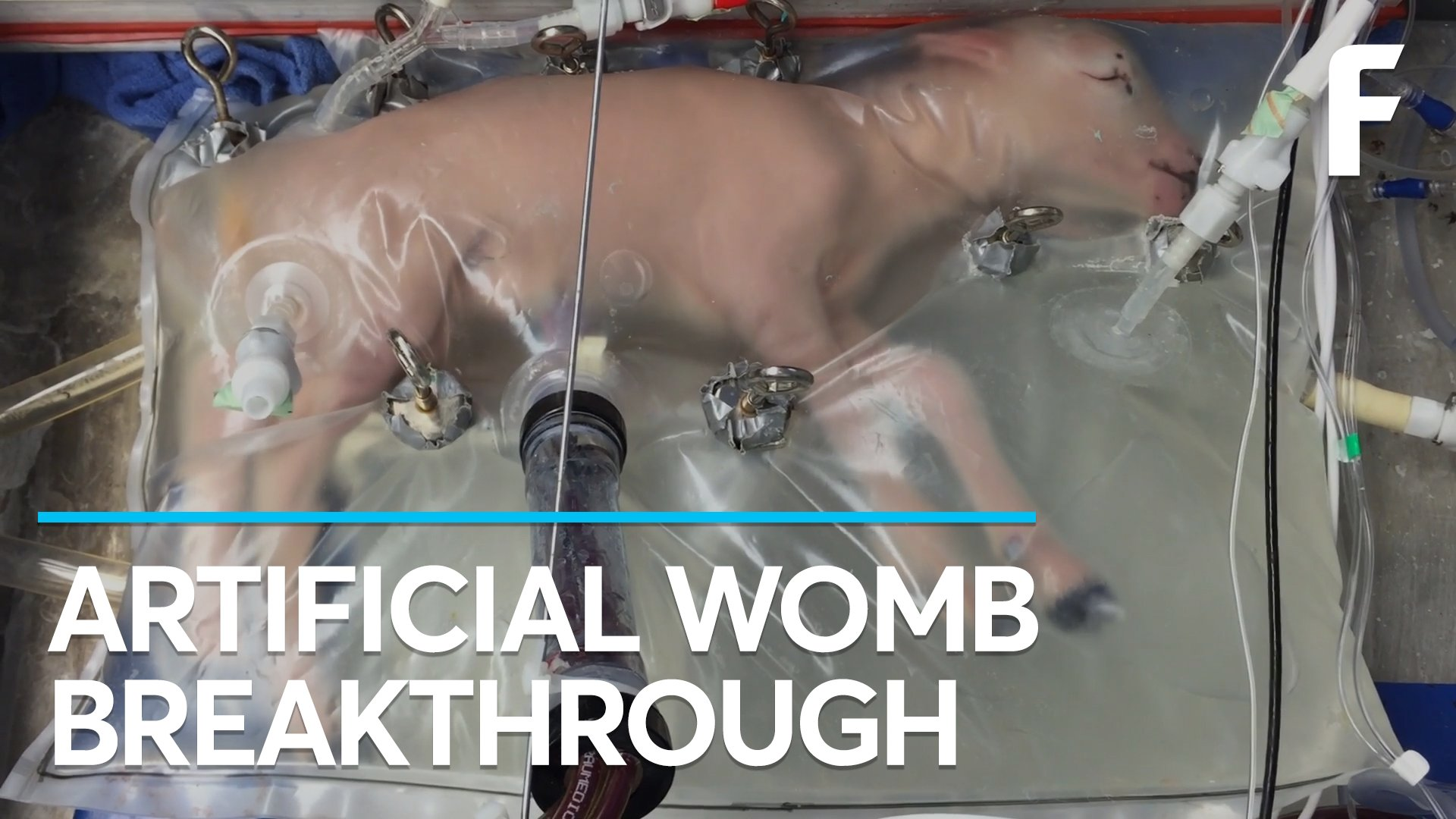 RT @futurism: BREAKING: Researchers have developed a functioning artificial womb. https://t.co/yYMa1c7i5I