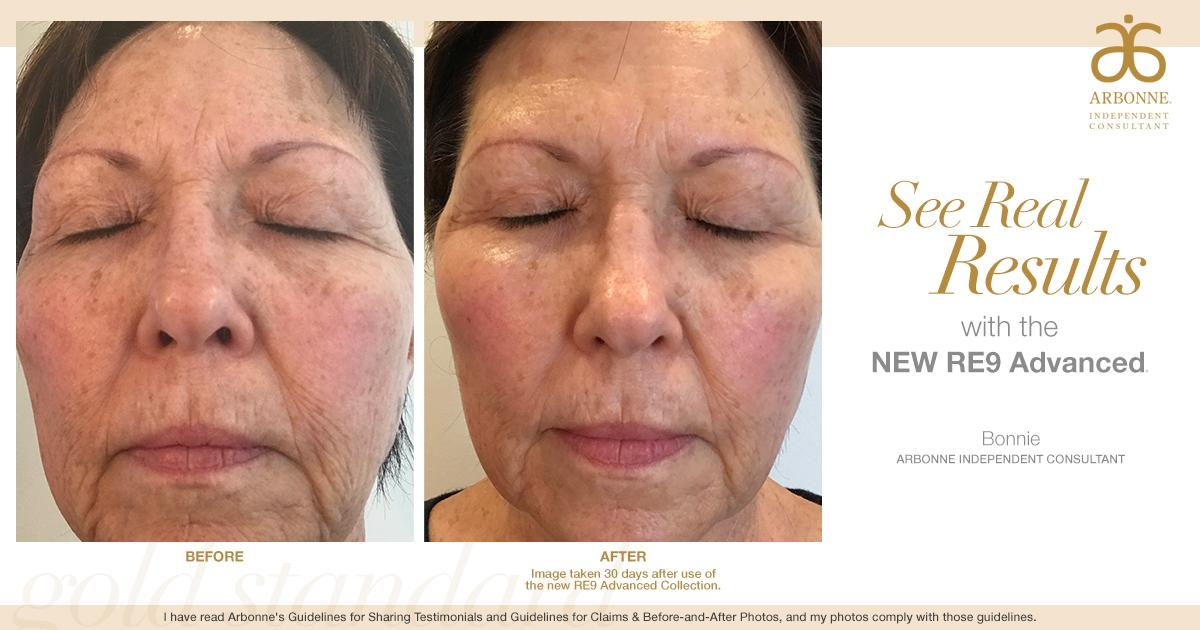 Arbonne On Twitter Real People Real Results Take The 30 Day