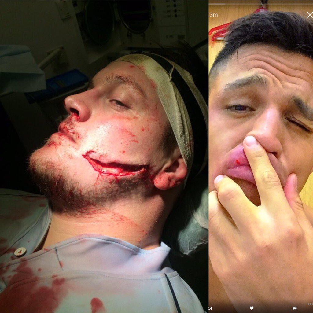 Of these 2 sportsman who posted facial injury pics on twitter which 1 rolled around on the floor holding their face? https://t.co/GLwM6iDw8e
