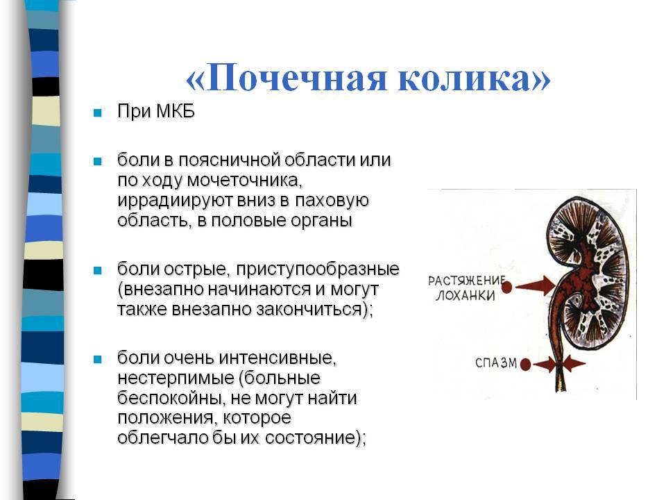 Мкб почечная колика история болезни