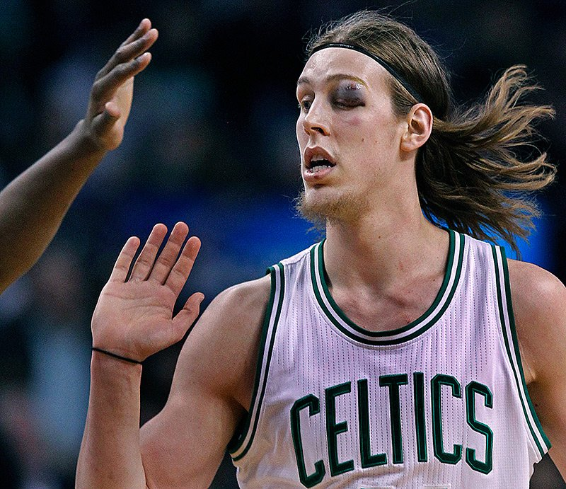 Remember when Kelly Olynyk looked like he went 12 rounds with Floyd Ma...