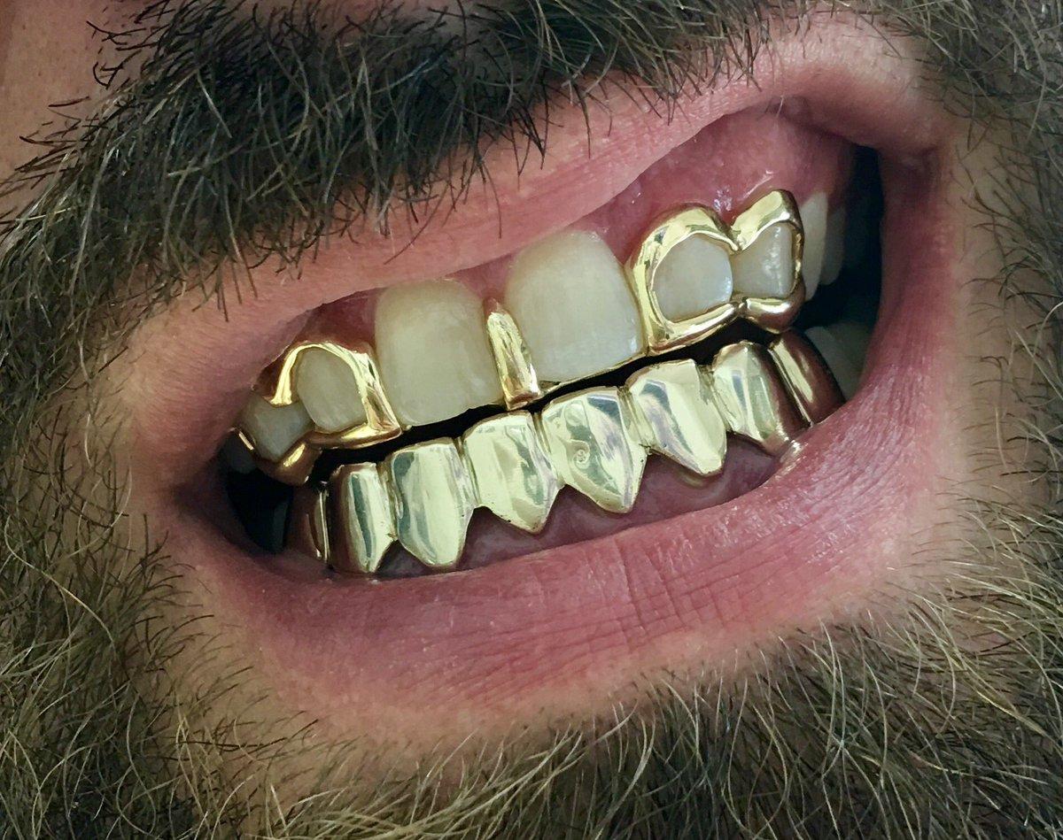 Tooth Gap Jewelry Style Guru Fashion Glitz Glamour