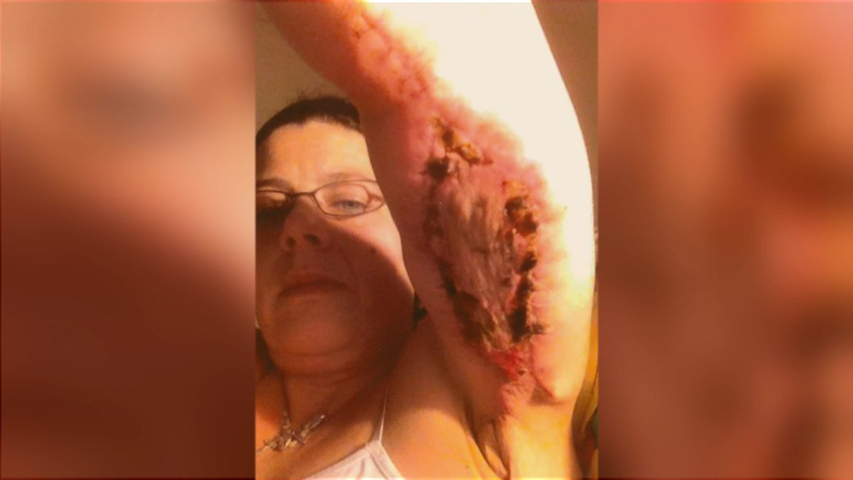 woman left scarred addicted pain pills botched skin removal