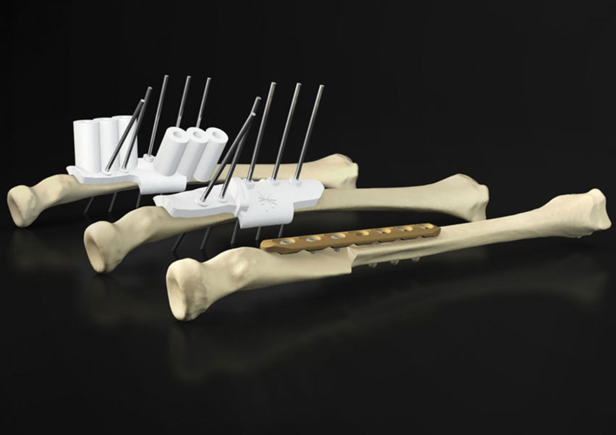 We're getting closer to mass production of bones, organs, and implants https://t.co/MKOwkWrs81