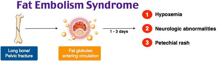 Image result for FAT EMBOLISM