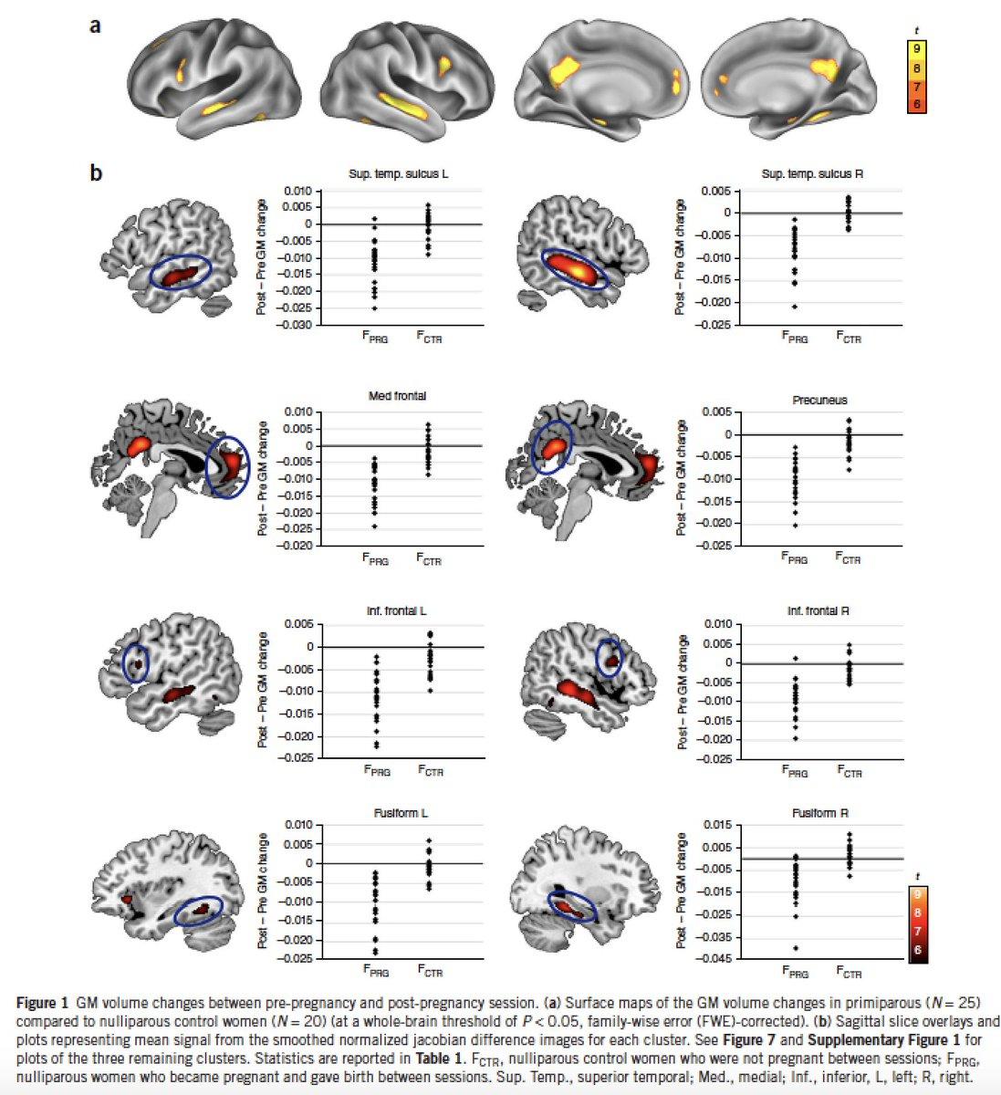 Http Www Nature Com Neuro Journal Vaop Ncurrent Full Nn  Html