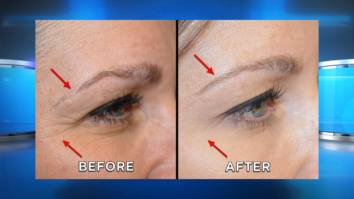 The Doctors On Twitter Prp Can You Regrow Eyebrows With A
