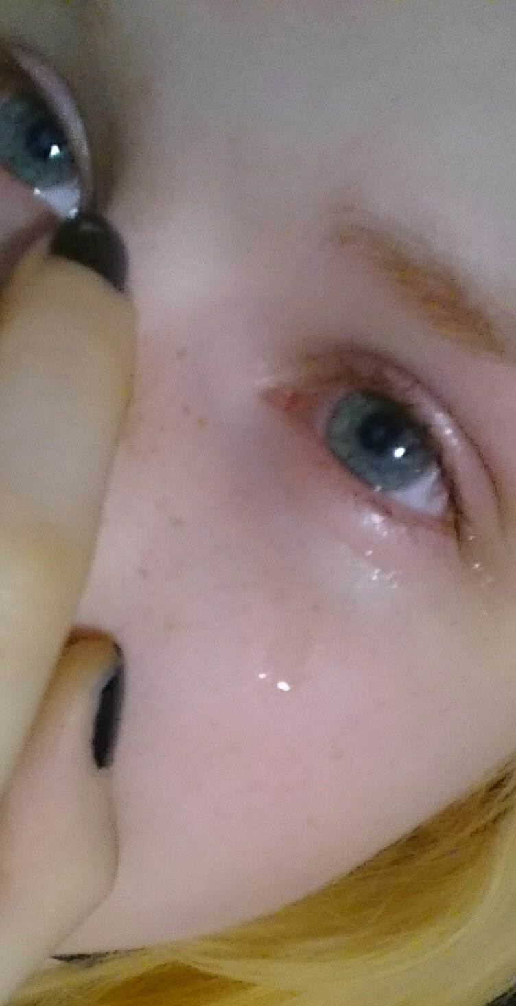недель назад сперма попала в глаз последствия когда показали