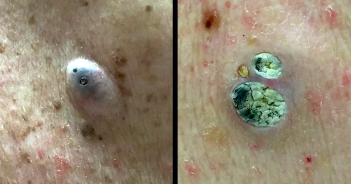 Dr Pimple Popper Blackheads Dr Lee Removes A Massive 55