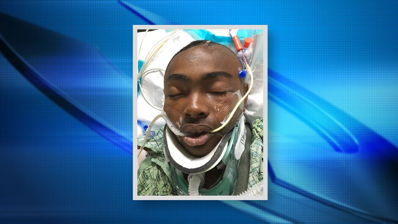 Police need help identifying bicyclist severely injured by suspect DUI driver https://t.co/ofzVyyNMhv https://t.co/UF6wKRhwO6